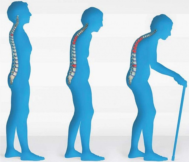 Managing Osteoporosis through Early Detection