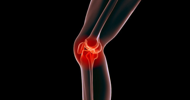 Investigating Joint Pain Through Radiology