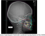 OPG & Lateral Cephalogram: A Closer Look